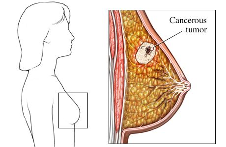 What exactly is breast cancer - Answerscom